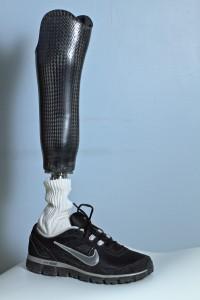 Midlands Prosthetic Leg